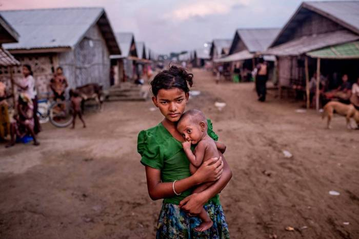 Oma Salema, 12, holds her undernourished brother Ayub Khan, 1, at a camp for Rohingya in Sittwe, Myanmar.